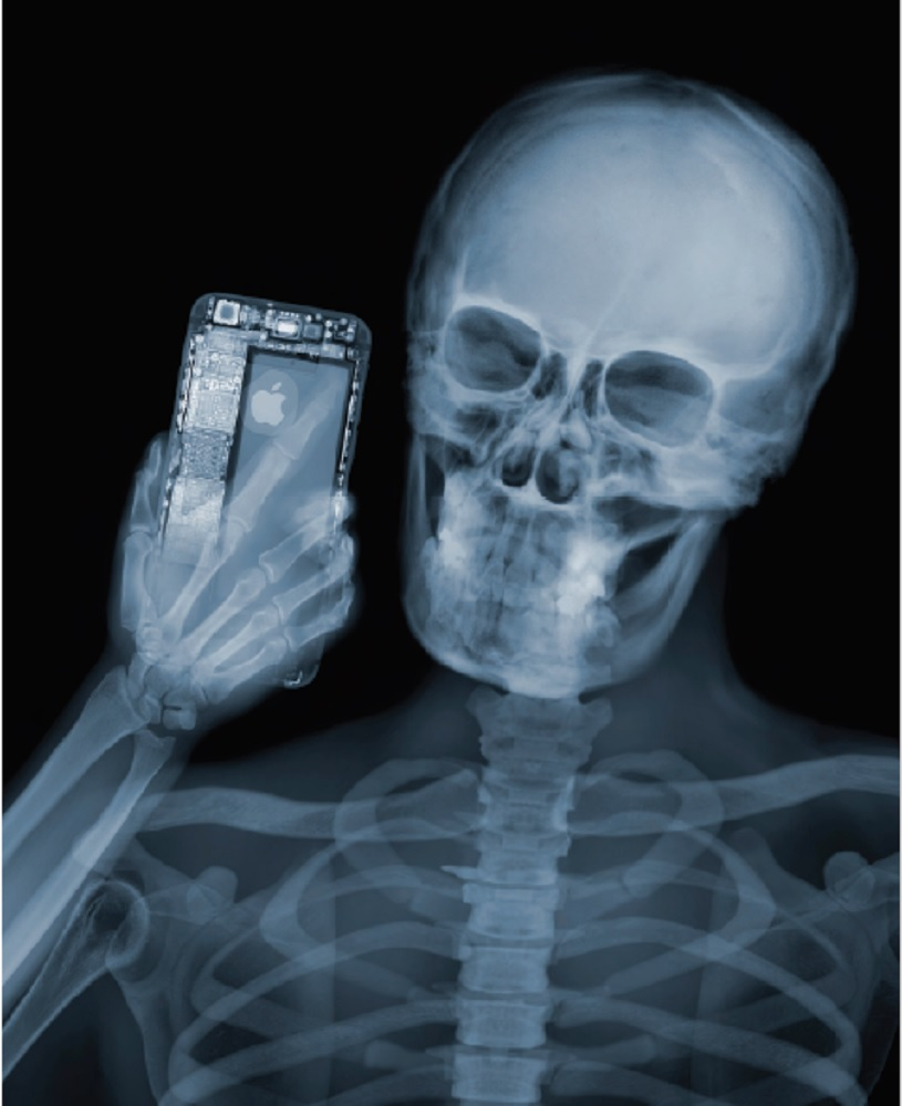 Nick Veasey, Selfie, 2015. C-Type Print mounted on Plexi, Edition 9 23 × 29.5 in or 58.42 × 74.93 cm.