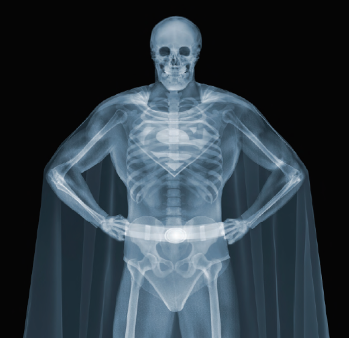 Nick Veasey, Superman, 2013. C-Type Print Mounted on Plexi, Edition 9 47 × 47 in or 119.38 × 119.38 cm. Edition 25 23 × 23 in or 58.42 × 58.42 cm.